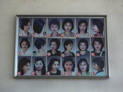 transplante-capilar-fue-cortes-coreia-do-norte-1